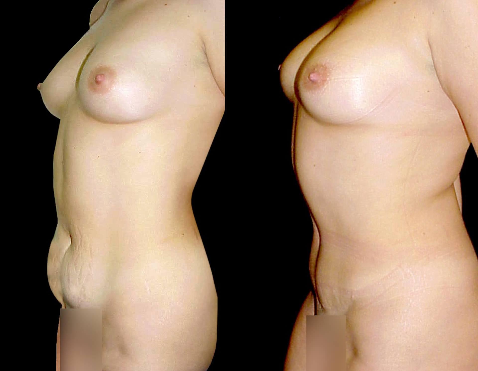Antes e depois de corpo de mulher com gravidezes sucessivas oscilações de peso e perda do tónus muscular recorre a abdominoplastia para remover flacidez e gordura abdominal e reposicionamento da musculatura da parede abdominal na Clínica Ibérico Nogueira