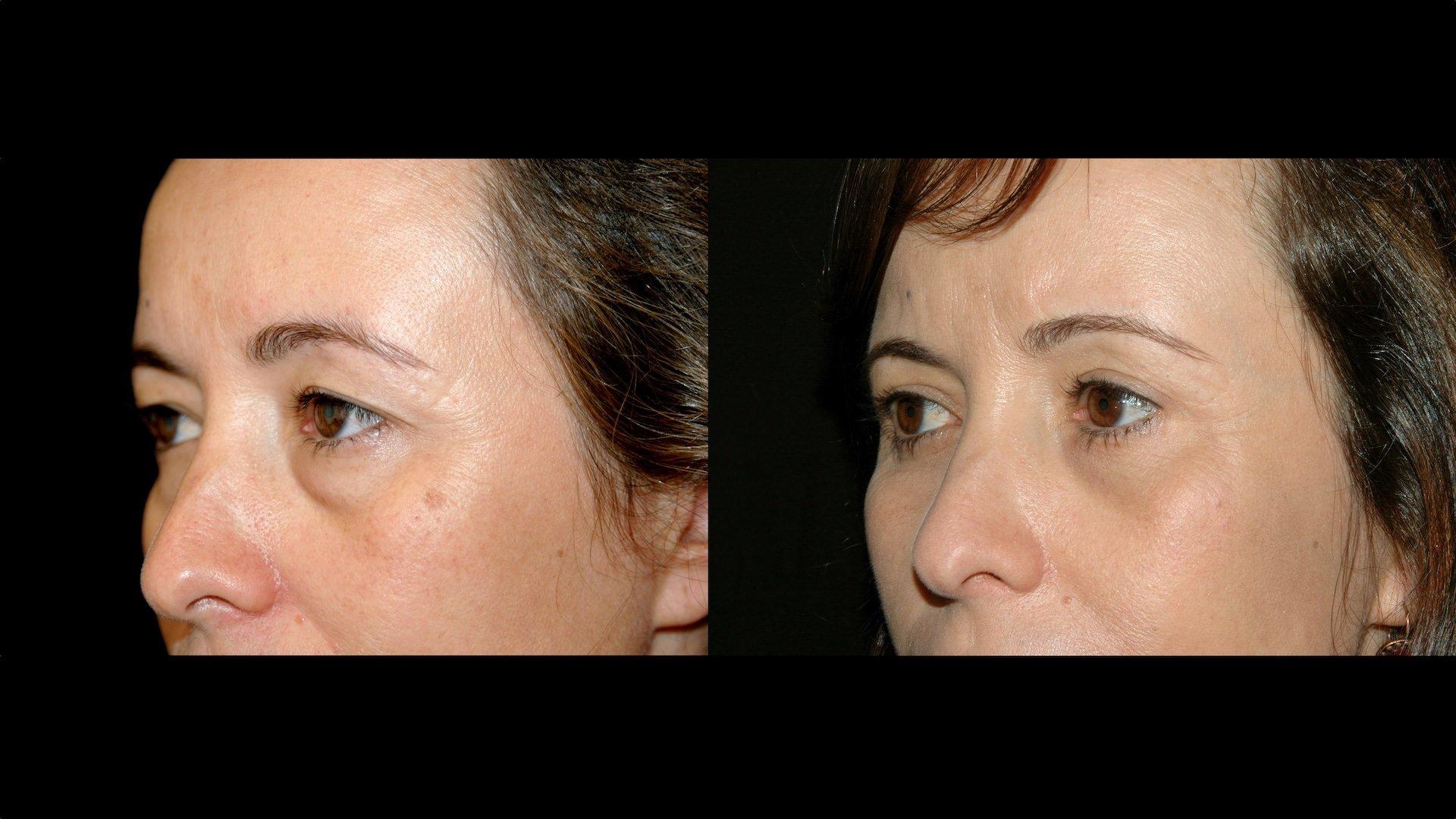 Antes e depois de olhos com papos excesso de pele manchas escuras rugas bolsas de gordura nas pálpebras recorre a tratamento cirúrgico de blefaroplastia para revitalizar o rosto e rejuvenescer o olhar na Clínica Ibérico Nogueira
