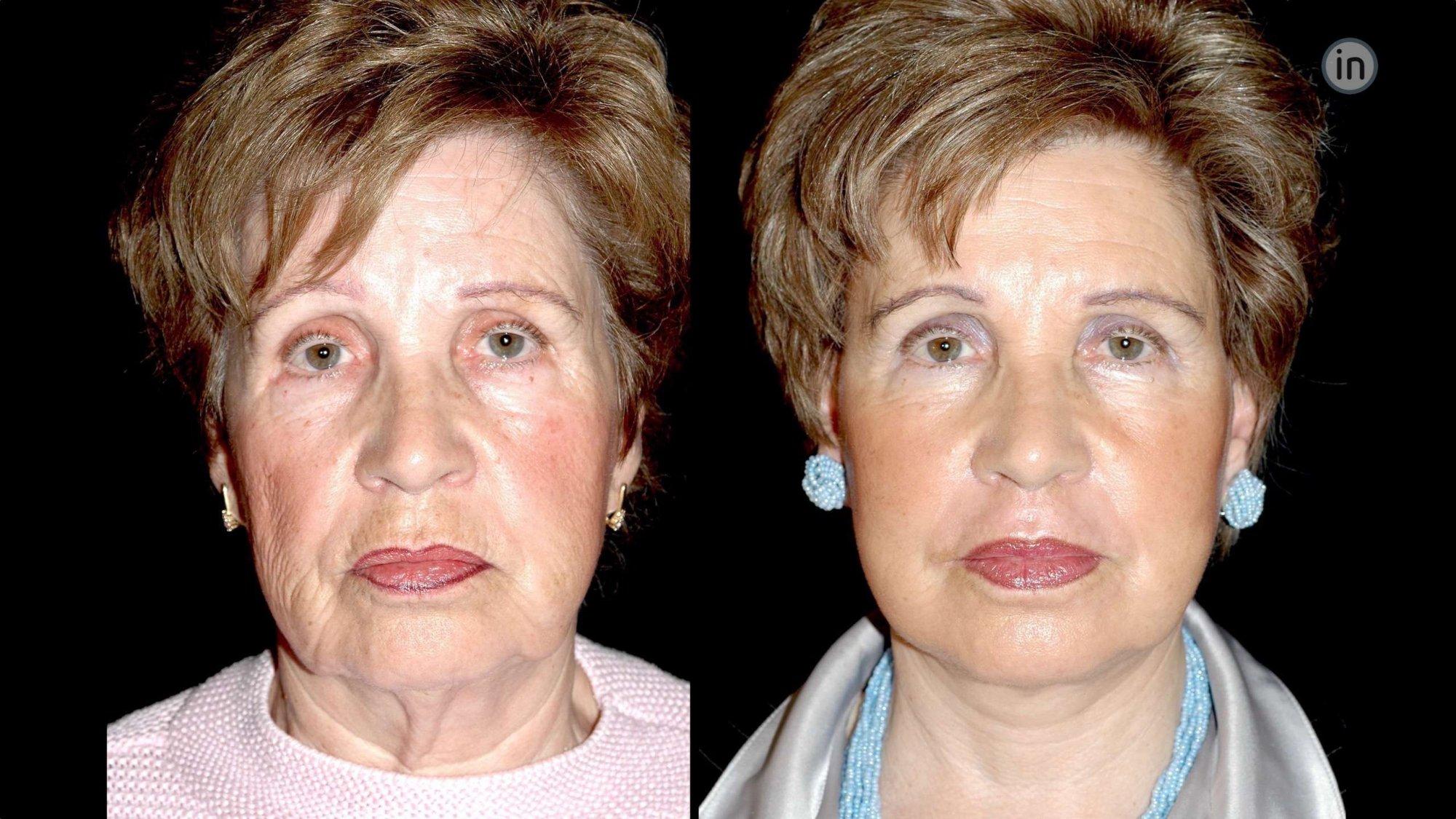 Antes e depois de rosto com lifting facial cirurgia da face para corrigir rugas da testa elevar sobrancelhas rejuvenescer pescoço ou rosto na Clínica Ibérico Nogueira