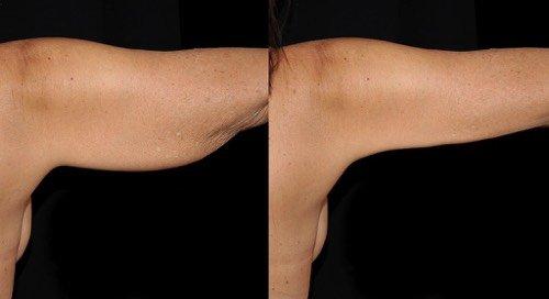 Antes e depois de braquioplastia ou lifting de braço mais liso e firme que reduz excesso de pele gordura na face interna do braço na Clínica Ibérico Nogueira