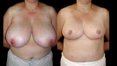Antes e depois de peito de mulher com mamas muito grandes de volume excessivo para diminuir o volume mamário com tratamento cirúrgico mamoplastia de redução na Clínica Ibérico Nogueira