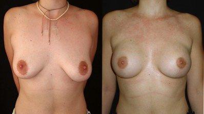 Antes e depois de peito de mulher com mamas flácidas e pesadas recorre a mastopexia ou levantamento mamário para aumento o volume na Clínica Ibérico Nogueira