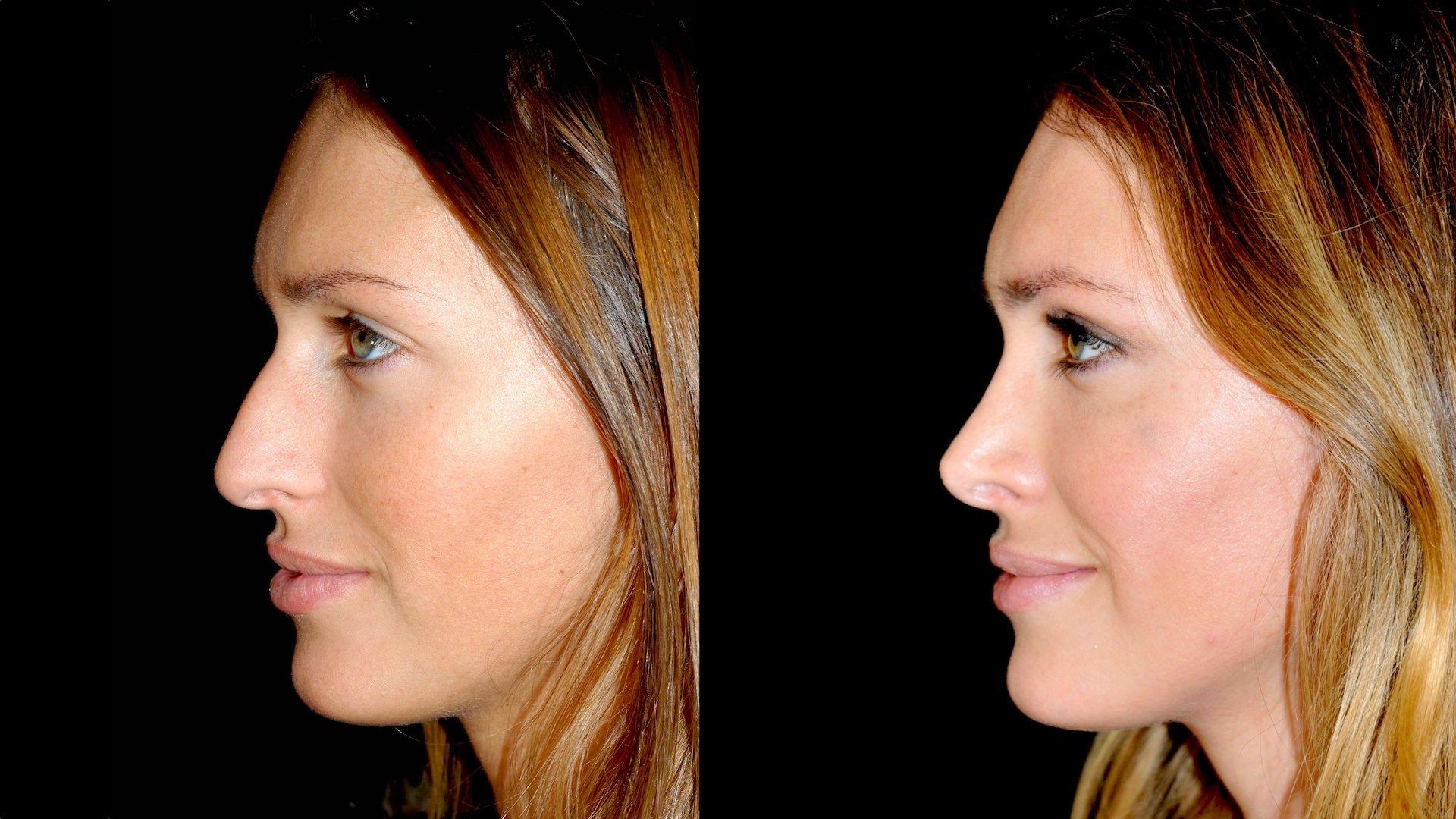 Antes e depos de face com nariz desproporcional corrigido por cirurgião plástico otorrinolaringologista que reposicionam estruturas nasais para rejuvenescimento facial na Clínica Ibérico Nogueira
