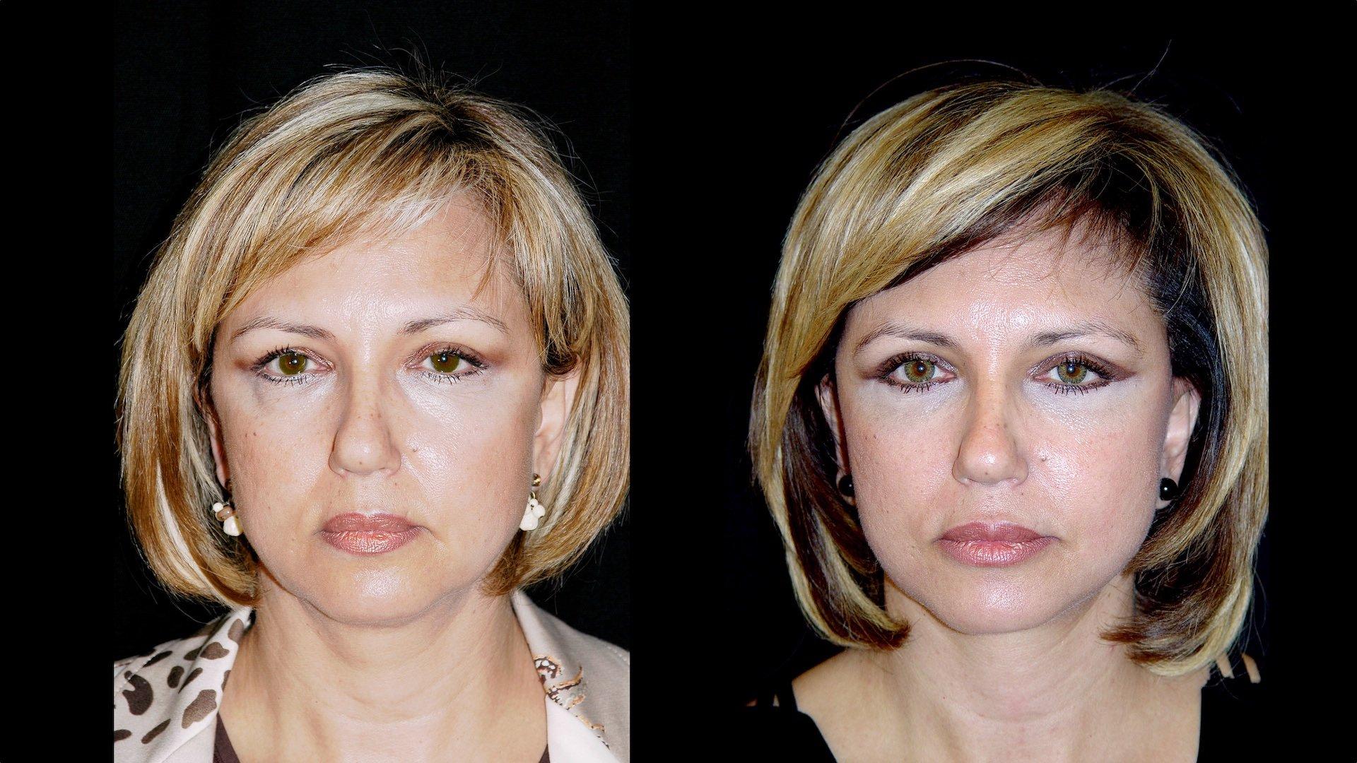 Antes e depos de face com soft lift rejuvenescimento facial contra envelhecimento e sinais do tempo na Clínica Ibérico Nogueira